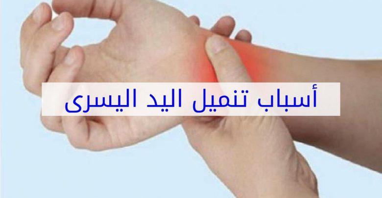 تنميل اليدين