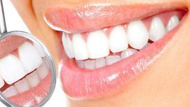 Photo of 10 وصفات طبيعية لتبييض الاسنان