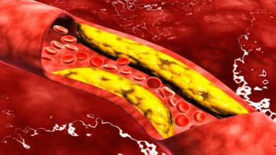 Photo of علاج الكوليسترول بالاعشاب