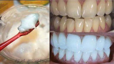 Photo of وصفات طبيعية ومجربة لتبييض الأسنان