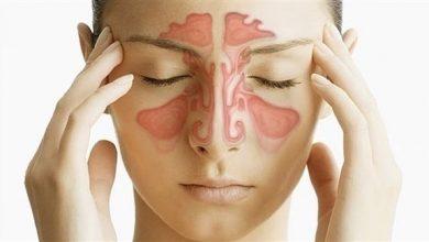 Photo of علاج التهاب الجيوب الانفية المزمن بالاعشاب