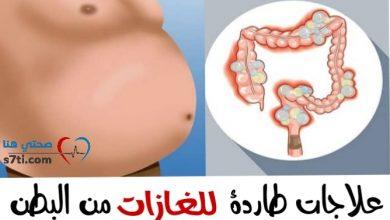 Photo of علاجات طاردة للغازات من البطن