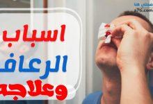 Photo of نزيف الأنف (الرعاف) وعلاجه