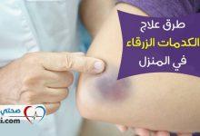 Photo of علاج الكدمات: خطوات أساسية ونصائح لشفاء سريع