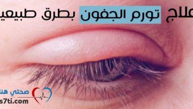 Photo of علاج انتفاخ العين: تورم الجفون وهالات سوداء وأمور أخرى!