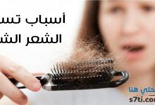 Photo of سبعة أسباب.. لماذا يتساقط الشعر؟