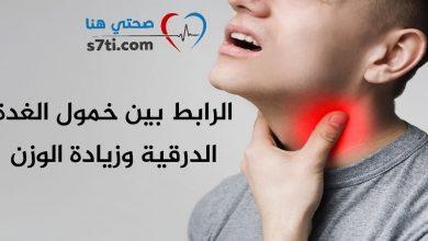 Photo of الرابط بين خمول الغدة الدرقية وزيادة الوزن