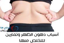 Photo of أسباب دهون الظهر وتمارين للتخلص منها