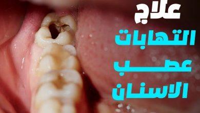 صورة مسكن ألم عصب الأسنان: أدوية ووصفات طبيعية
