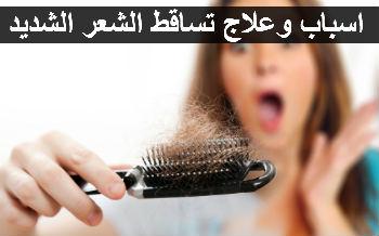 صورة إيقاف تساقط الشعر: أهم الطرق