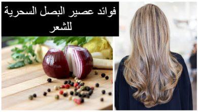 صورة عصير البصل: حل لتساقط الشعر؟